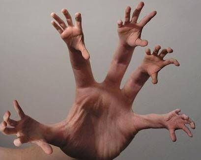 Alien-hand-syndrom