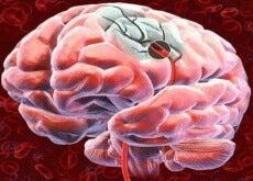 Blodflödet-till-hjärnan