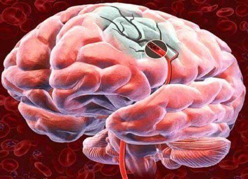 Upptäck 5 sätt att öka blodflödet till hjärnan