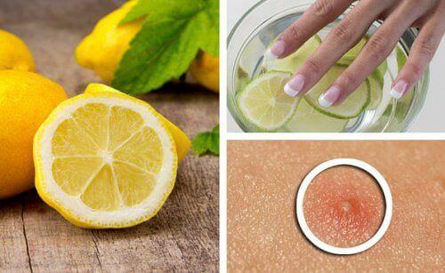 Citroner-för-skönhet