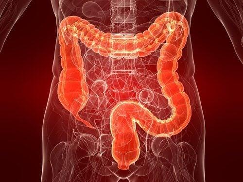 Ulcerös-kolit