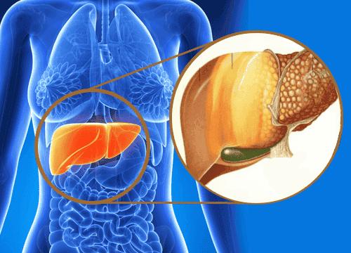 Behandla fettlever genom att använda kokosolja