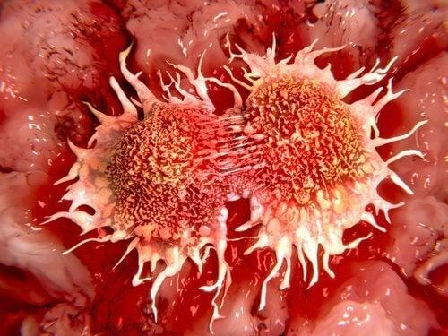 Cancerceller i kroppen
