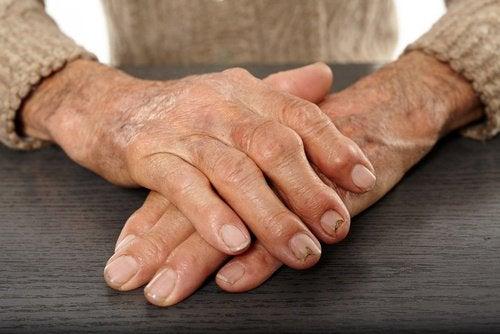 Lindra-artrit