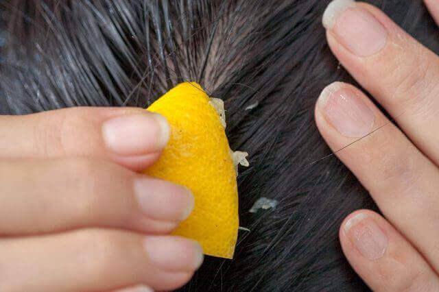 Bekämpa håravfall med citronjuice