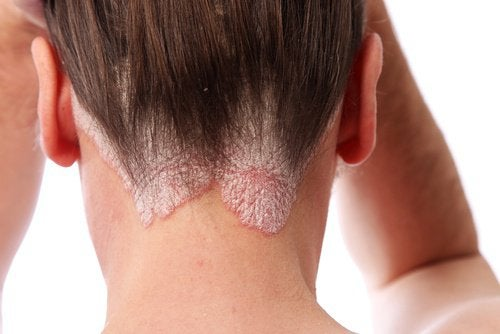 psoriasis i hårbotten tips