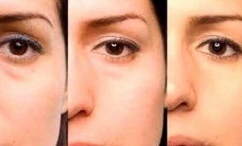 1-påsar-under-ögonen