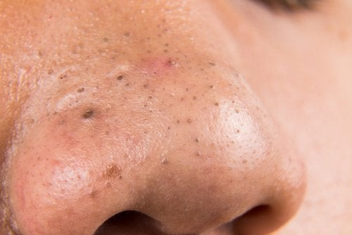 pormaskar på näsan tips