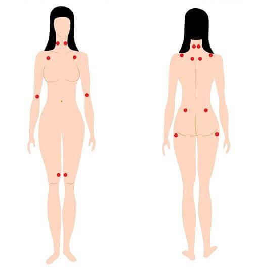Lär dig känna igen tidiga varningstecken på fibromyalgi