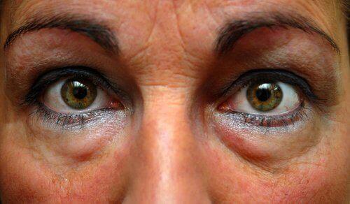 vad beror påsar under ögonen på