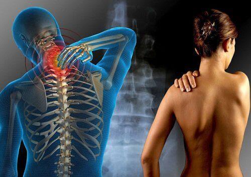 Peson med fibromyalgi