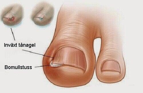 6 gamla kurer för inåtväxande tånaglar
