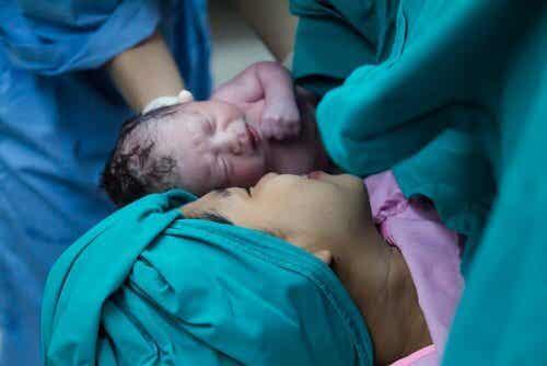 """Kejsarsnitt ger bebisar ett """"bad"""" i underlivsbakterier"""