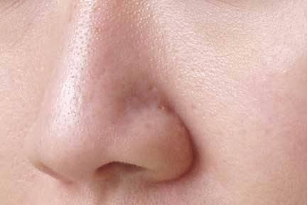 Upptäck hur du naturligt stänger dina porer