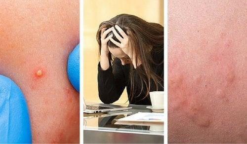 7 tecken på att dina stressnivåer är för höga