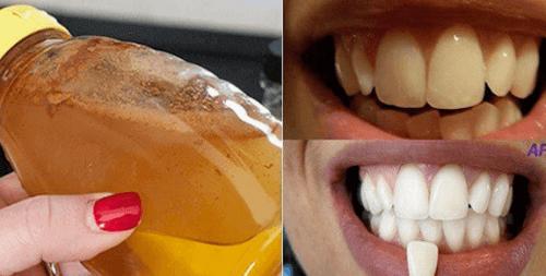 1-whiten-teeth