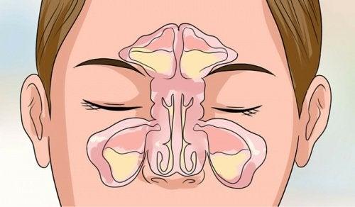 6 tips för att bli av med en täppt näsa inom några minuter