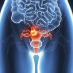 endometrios