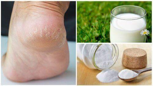 Mjukare fötter med bara två naturliga ingredienser