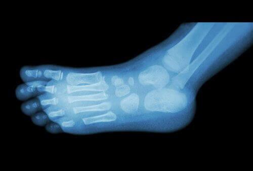 Röntgen av fot