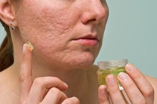 Lindra din akne med väteperoxid