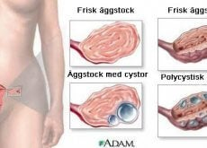 ovarialcystor