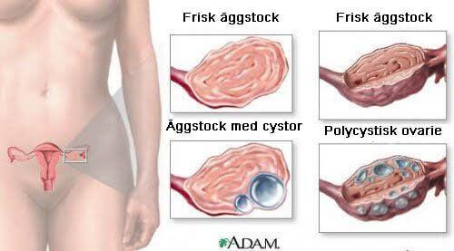 9 fakta om ovarialcystor som alla kvinnor bör ha koll på