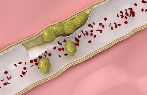 1-clean-arteries