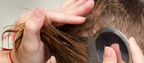 7 naturliga sätt att bli av med huvudlöss
