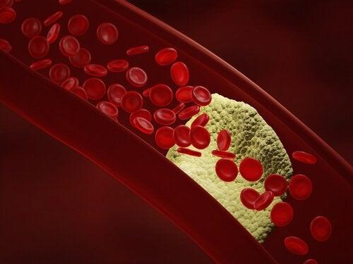 Blodtrycket