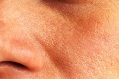 Naturliga huskurer för att stänga öppna porer
