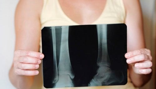 Hur man bibehåller benmassan efter klimakteriet