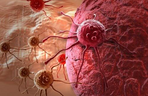 Cancer kan skapa besvär med magen