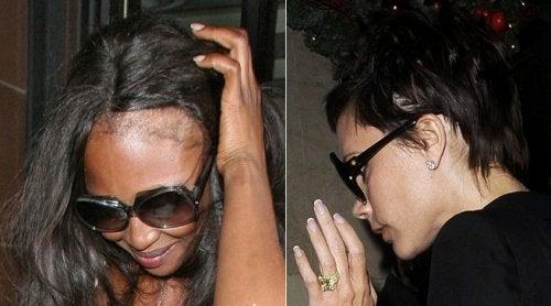 5 råd och tips för att dölja håravfall