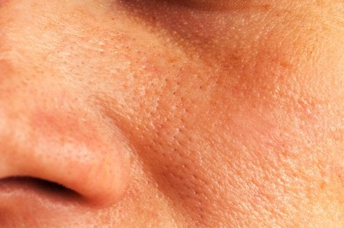 förstorade porer behandling