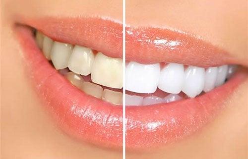 8 livsmedel som ger dig gula tänder