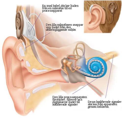 Hur hörseln fungerar