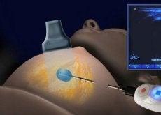 fryskirurgi