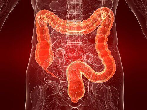 Ulcerös kolit: En ännu okänd sjukdom