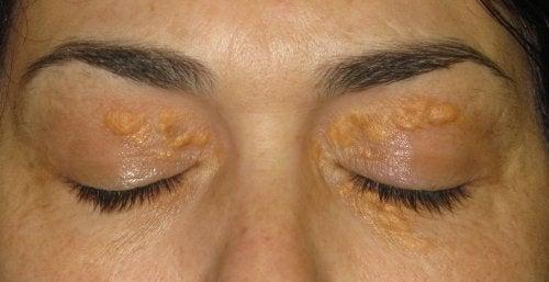 Xantelasma: vita fläckar runt ögonen