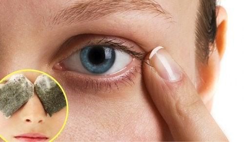 behandling mot mörka ringar under ögonen