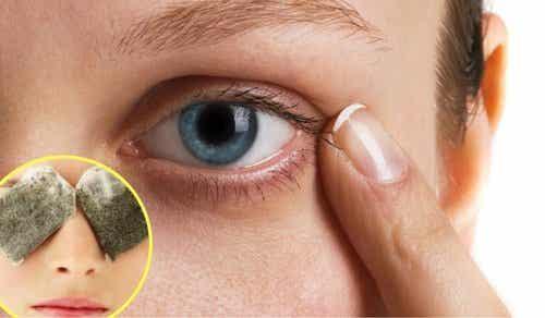 5 kurer mot mörka ringar under ögonen