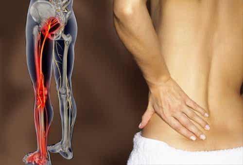 Hur man blir av med smärta i ischiasnerven med träning