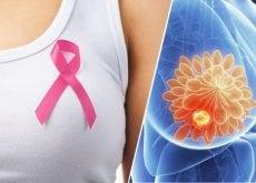 Bröstcancer och Rosa bandet