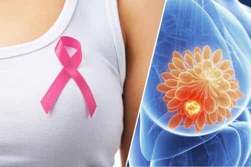 Snart kan vi upptäcka bröstcancer med hjälp av ett piller