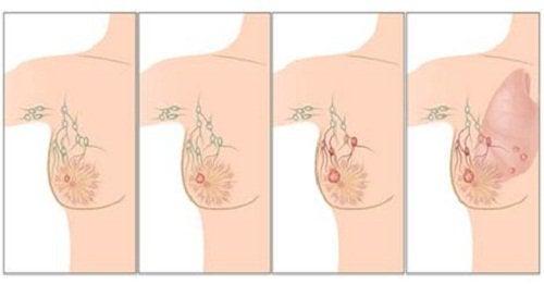 Stadier av bröstcancer