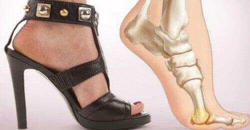 5 fördelar med att sluta bära högklackade skor