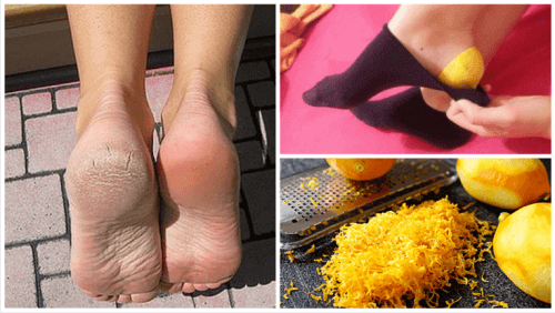 Använd citronskal för att ta hand om fötterna