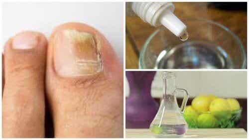 Behandla nagelsvamp naturligt med 3 ingredienser