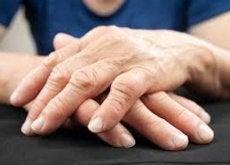 att-behandla-artrit
